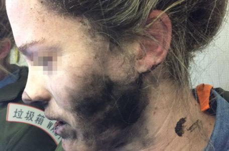 """Пассажирка рейса """"Пекин – Мельбурн"""", получившая ожоги лица из-за взрыва батареи в ее наушниках"""