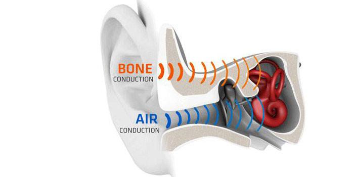 Схема работы костной проводимости звука